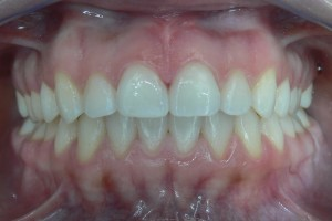 After (teeth #8-9)